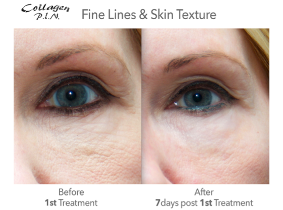 Show results of microneedling on fine lines and skin texture